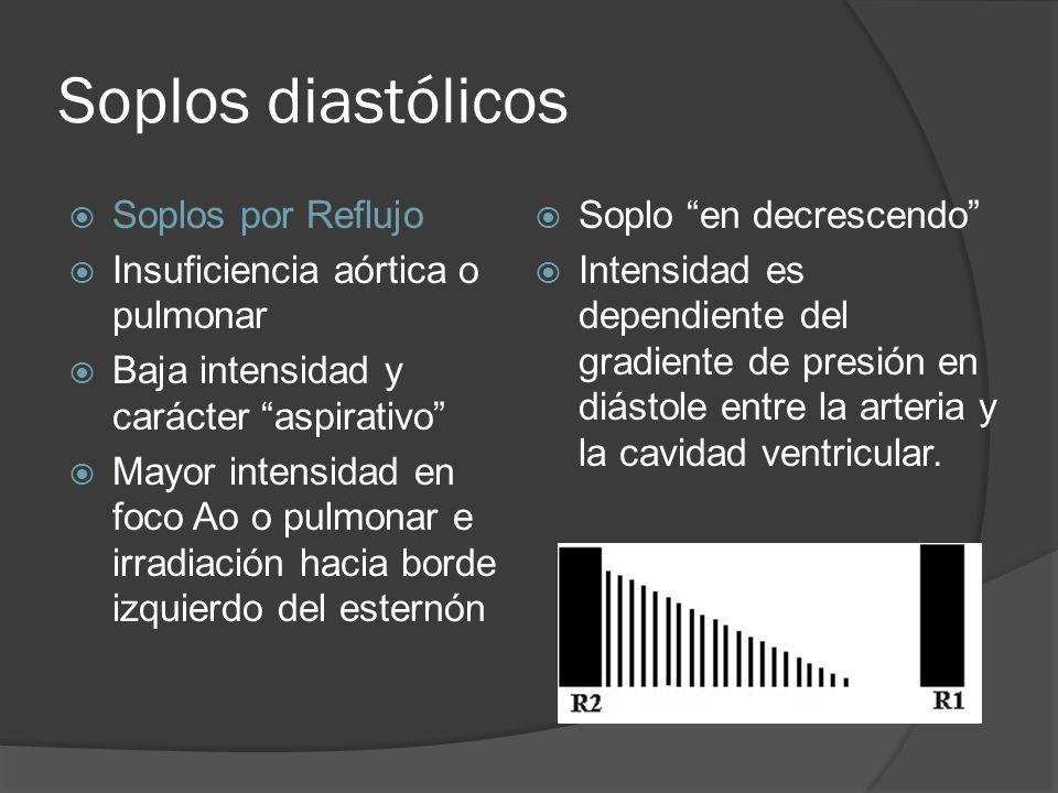 Soplos diastólicos Soplos por Reflujo Insuficiencia aórtica o pulmonar