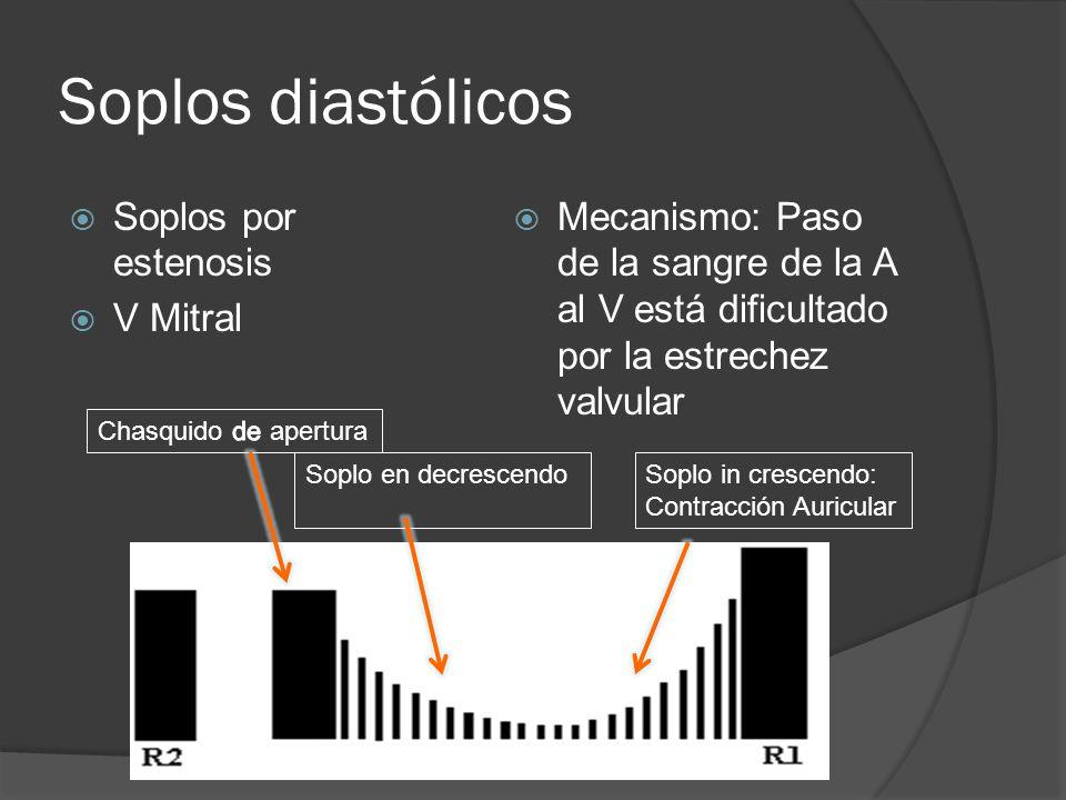 Soplos diastólicos Soplos por estenosis V Mitral