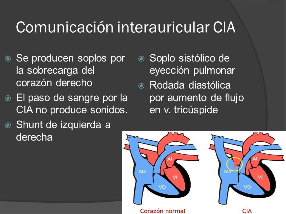 Comunicación interauricular CIA
