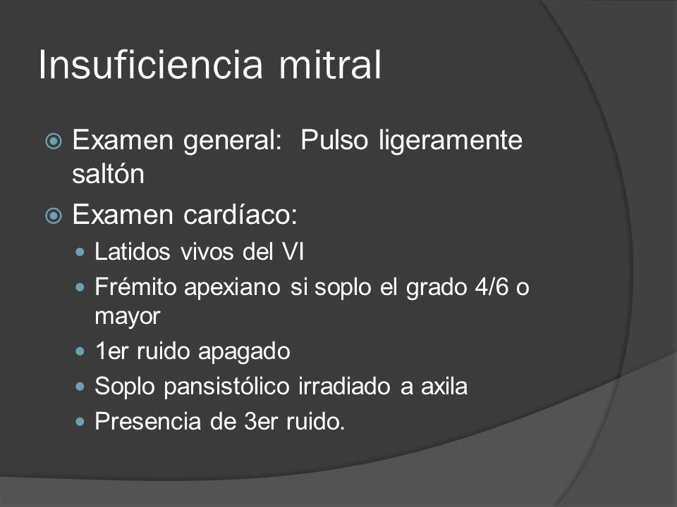 Insuficiencia mitral Examen general: Pulso ligeramente saltón