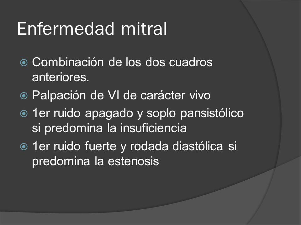 Enfermedad mitral Combinación de los dos cuadros anteriores.