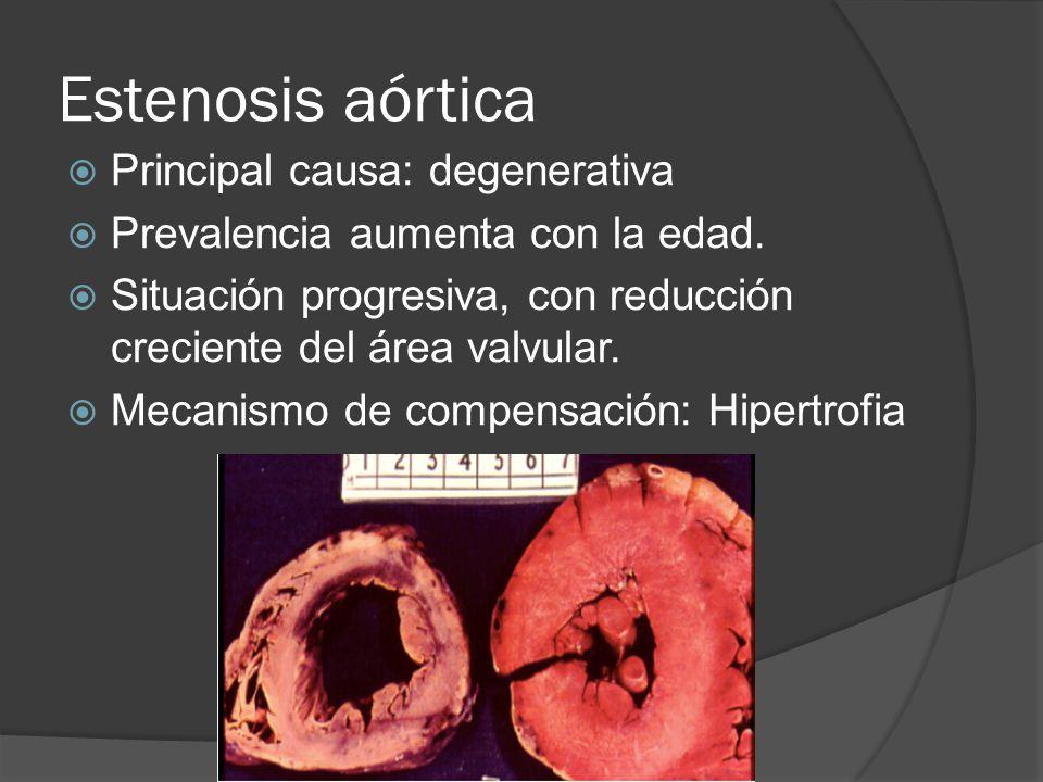 Estenosis aórtica Principal causa: degenerativa