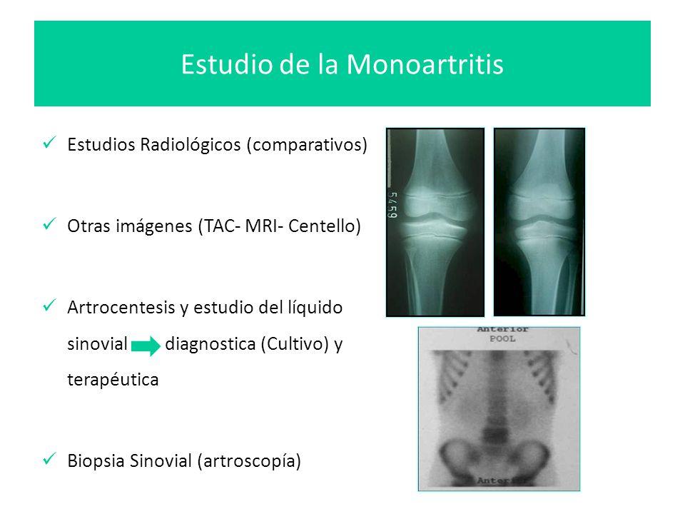 Estudio de la Monoartritis