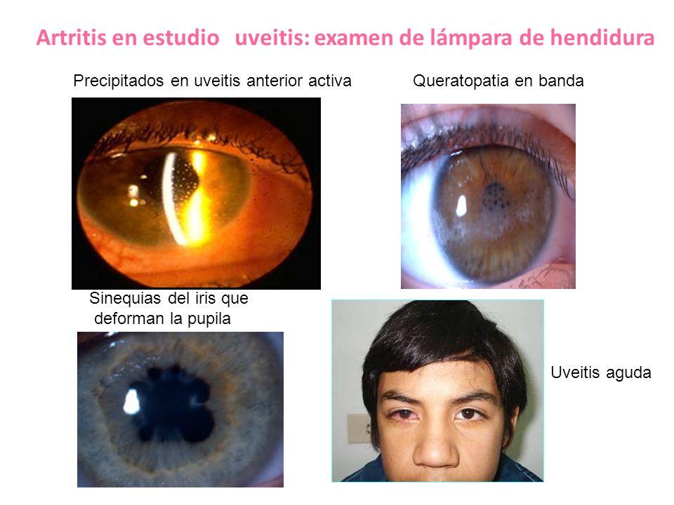 Artritis en estudio uveitis: examen de lámpara de hendidura