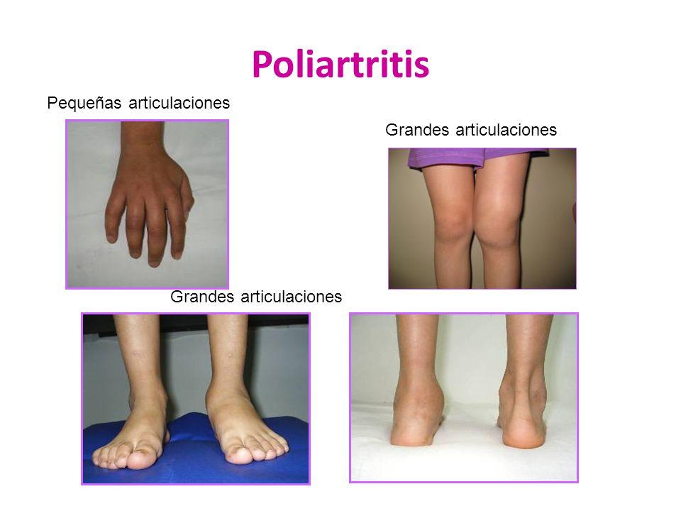Poliartritis Pequeñas articulaciones Grandes articulaciones