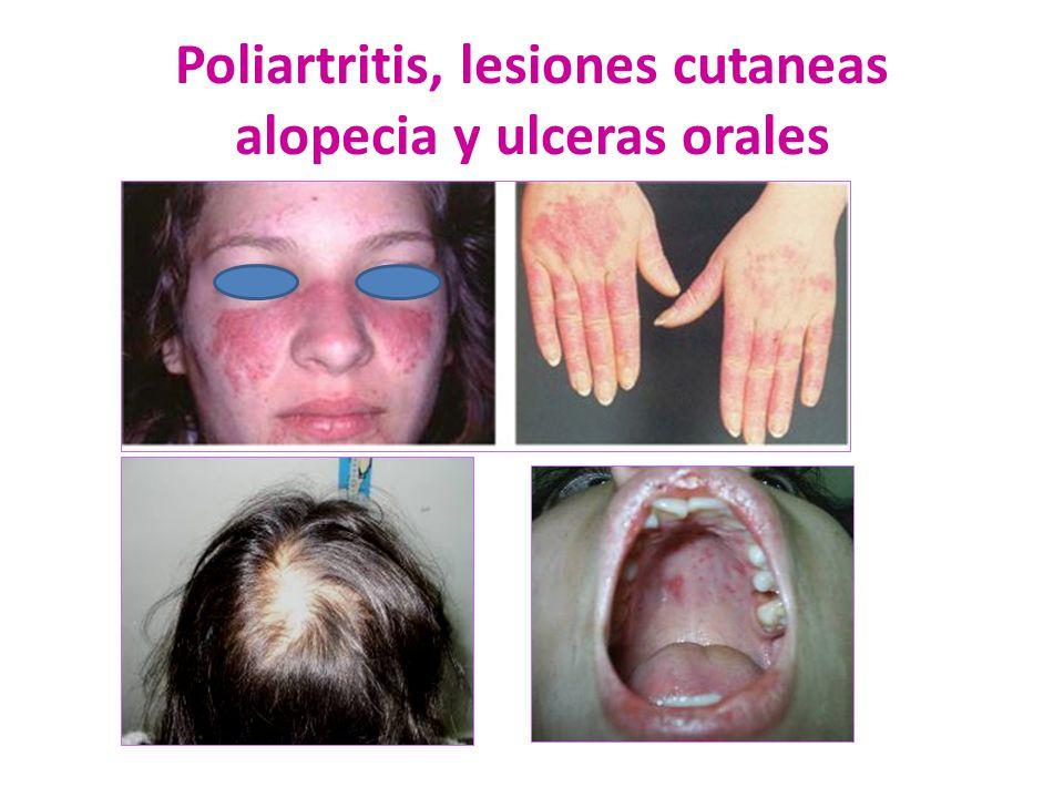 Poliartritis, lesiones cutaneas alopecia y ulceras orales