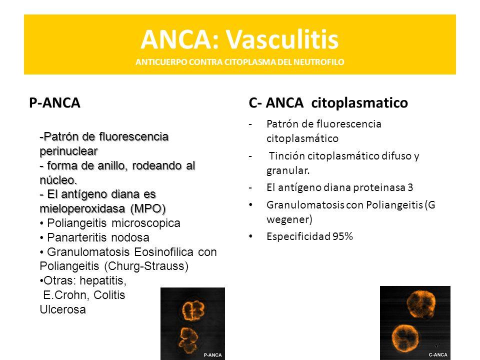 ANCA: Vasculitis ANTICUERPO CONTRA CITOPLASMA DEL NEUTROFILO