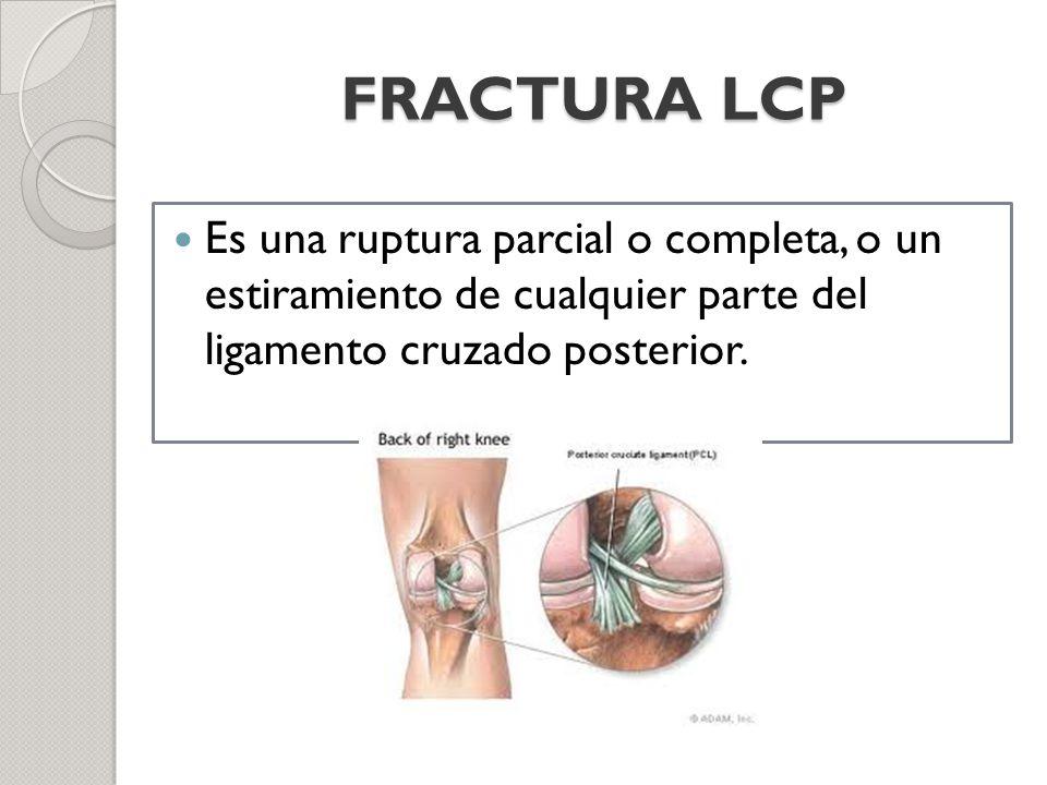 FRACTURA LCP Es una ruptura parcial o completa, o un estiramiento de cualquier parte del ligamento cruzado posterior.
