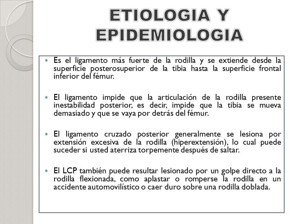 ETIOLOGIA Y EPIDEMIOLOGIA