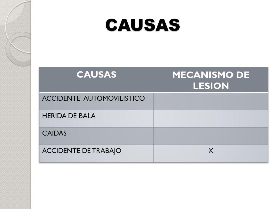 CAUSAS CAUSAS MECANISMO DE LESION ACCIDENTE AUTOMOVILISTICO