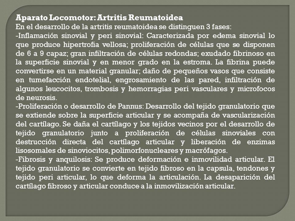 Aparato Locomotor: Artritis Reumatoidea