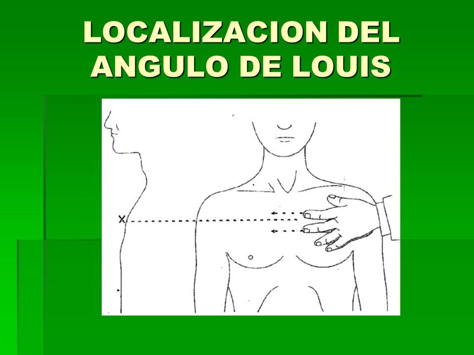 LOCALIZACION DEL ANGULO DE LOUIS