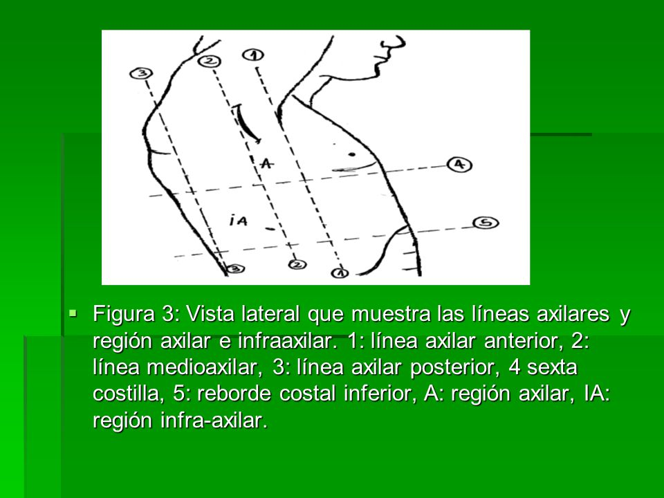 Figura 3: Vista lateral que muestra las líneas axilares y región axilar e infraaxilar.