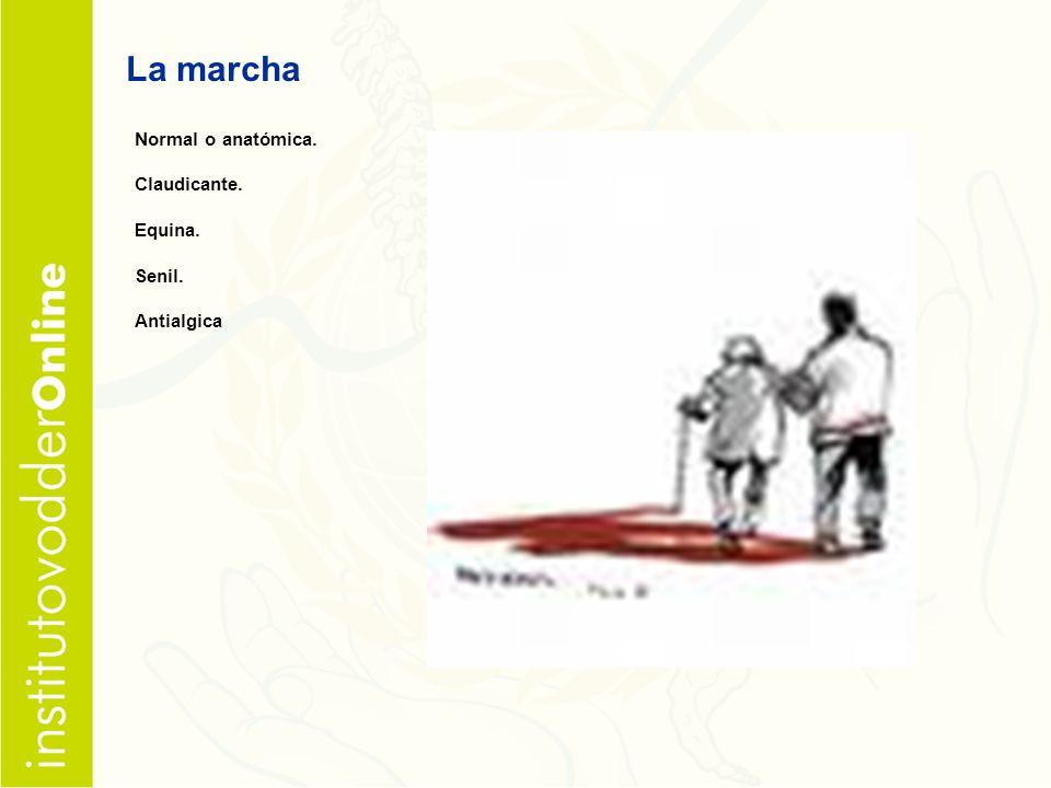 La marcha Normal o anatómica. Claudicante. Equina. Senil. Antialgica
