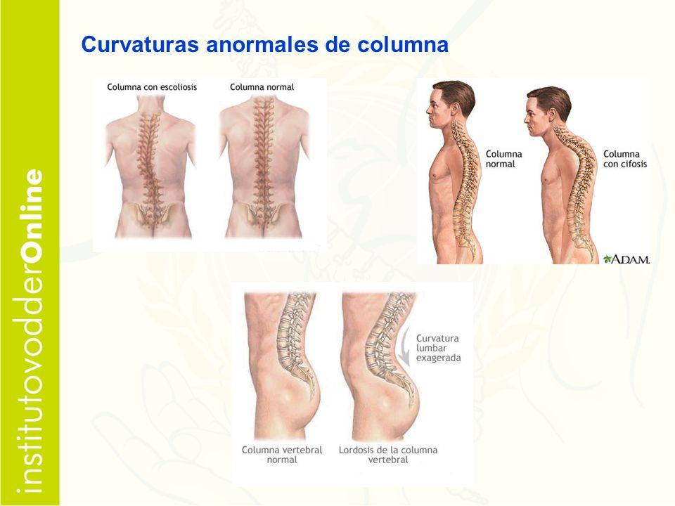 Curvaturas anormales de columna