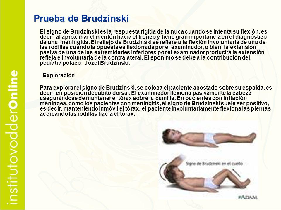Prueba de Brudzinski