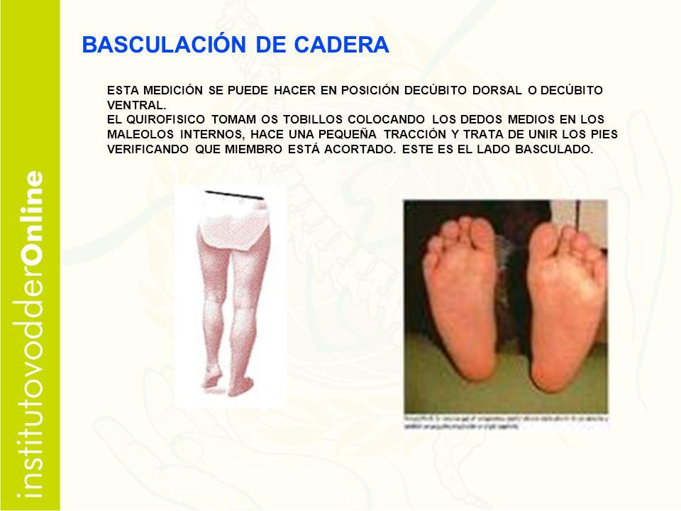 BASCULACIÓN DE CADERA ESTA MEDICIÓN SE PUEDE HACER EN POSICIÓN DECÚBITO DORSAL O DECÚBITO VENTRAL.