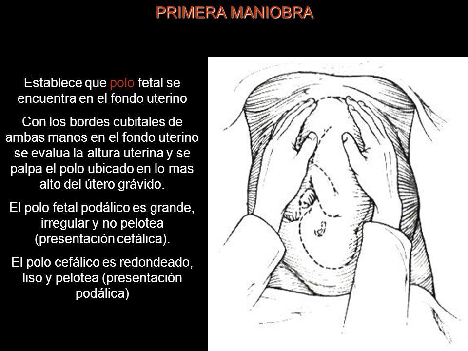 PRIMERA MANIOBRA Establece que polo fetal se encuentra en el fondo uterino.