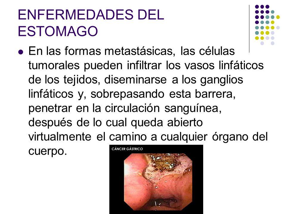ENFERMEDADES DEL ESTOMAGO