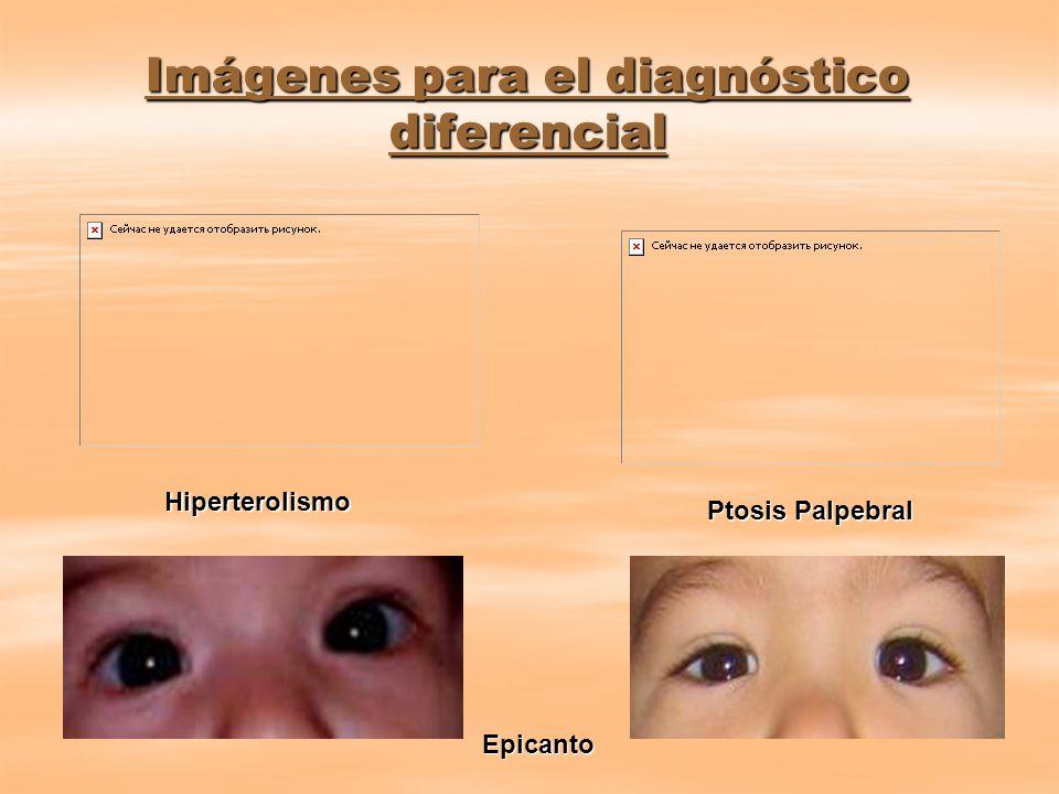 Imágenes para el diagnóstico diferencial