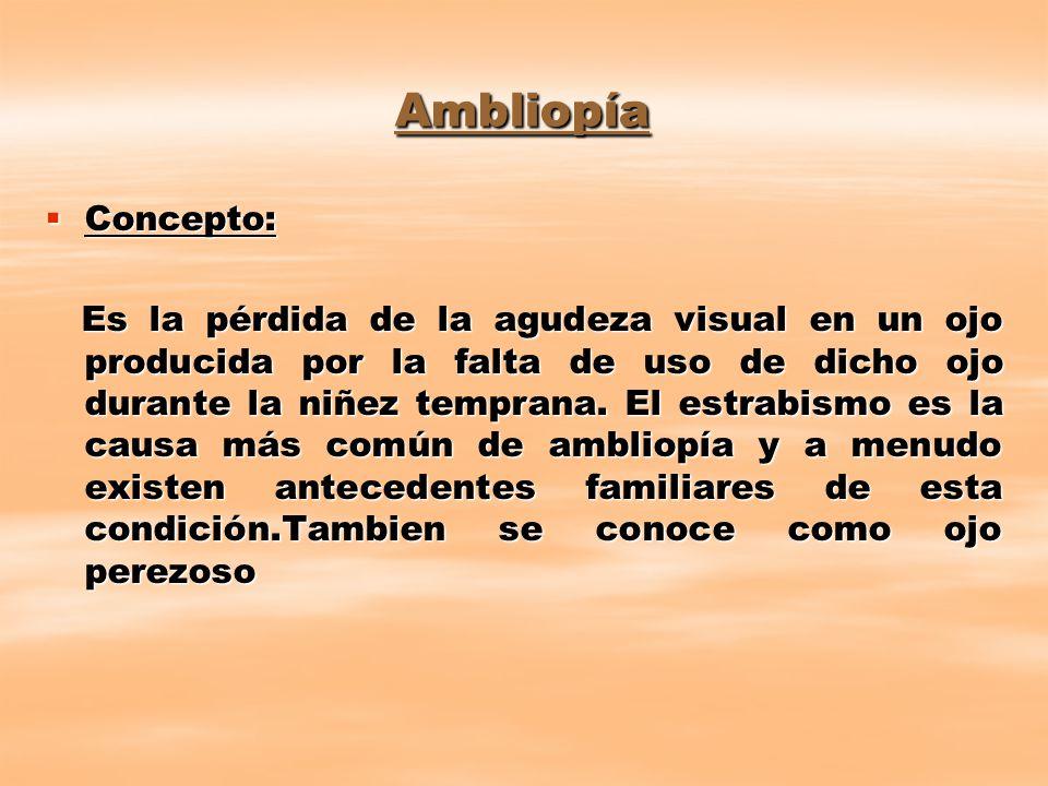 Ambliopía Concepto: