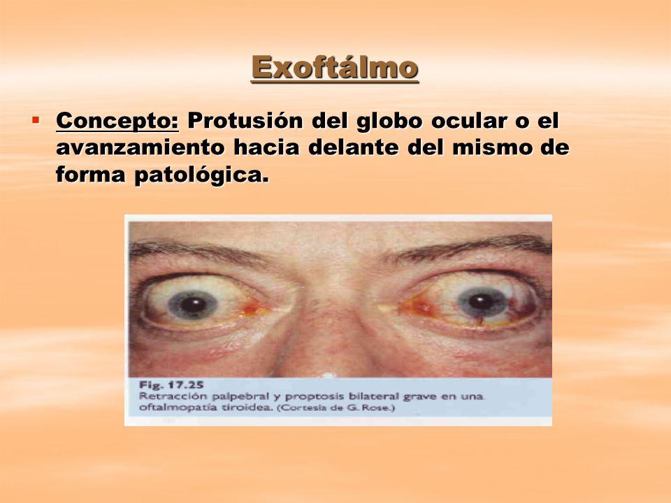 Exoftálmo Concepto: Protusión del globo ocular o el avanzamiento hacia delante del mismo de forma patológica.