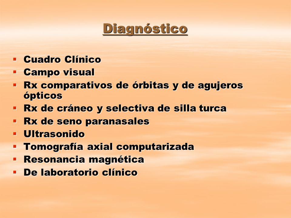 Diagnóstico Cuadro Clínico Campo visual