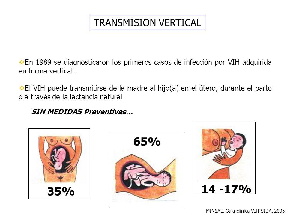 65% 14 -17% 35% TRANSMISION VERTICAL