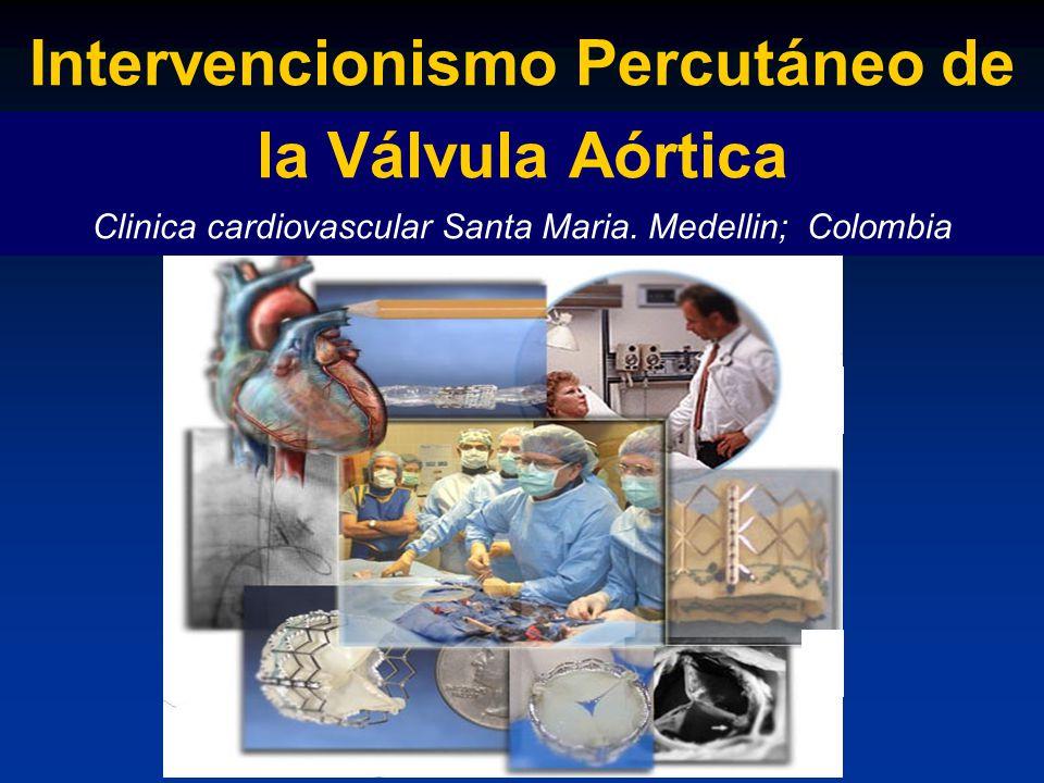 Intervencionismo Percutáneo de la Válvula Aórtica Clinica cardiovascular Santa Maria.
