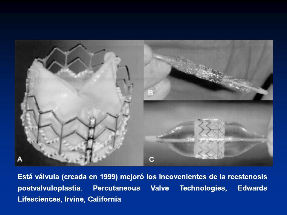 Está válvula (creada en 1999) mejoró los incovenientes de la reestenosis postvalvuloplastia.