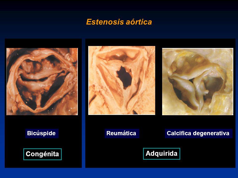 Estenosis aórtica Congénita Adquirida Bicúspide Reumática