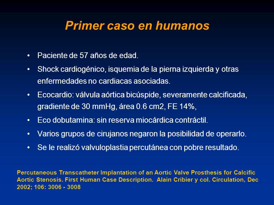 Primer caso en humanos Paciente de 57 años de edad.