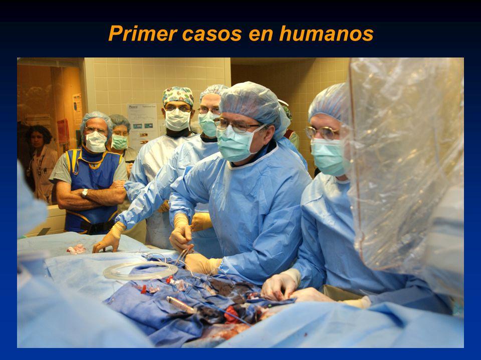 Primer casos en humanos