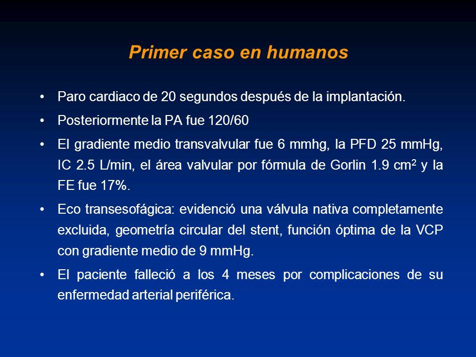 Primer caso en humanos Paro cardiaco de 20 segundos después de la implantación. Posteriormente la PA fue 120/60.