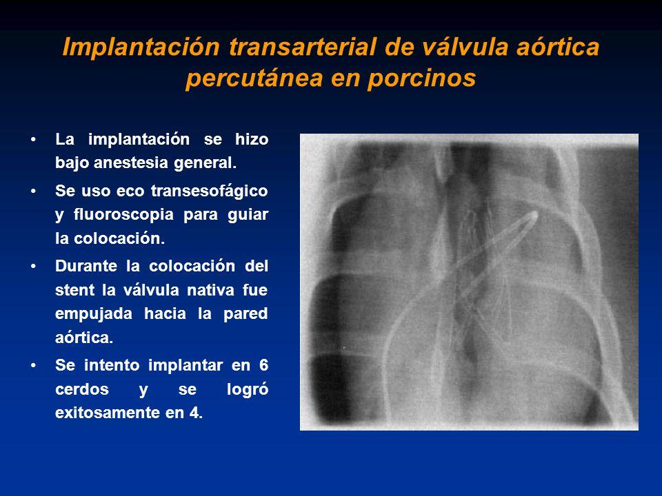 Implantación transarterial de válvula aórtica percutánea en porcinos