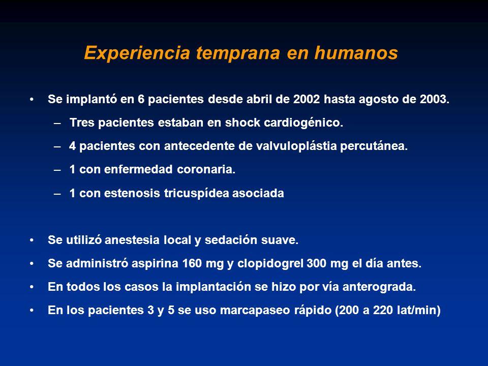 Experiencia temprana en humanos