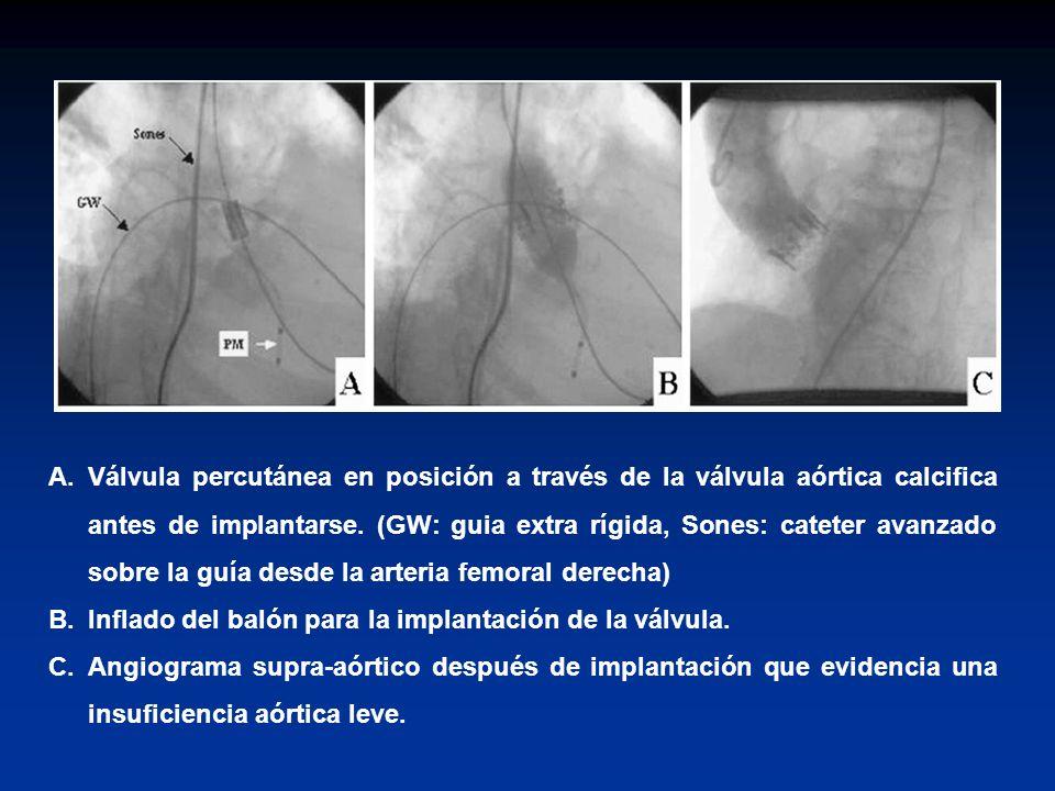 Válvula percutánea en posición a través de la válvula aórtica calcifica antes de implantarse. (GW: guia extra rígida, Sones: cateter avanzado sobre la guía desde la arteria femoral derecha)