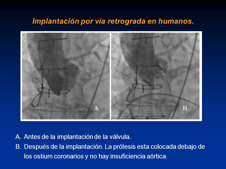 Implantación por vía retrograda en humanos.