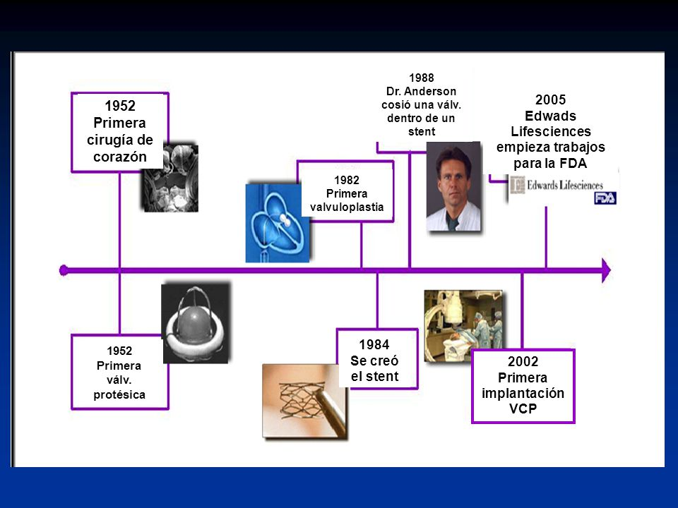 1952 Primera cirugía de corazón