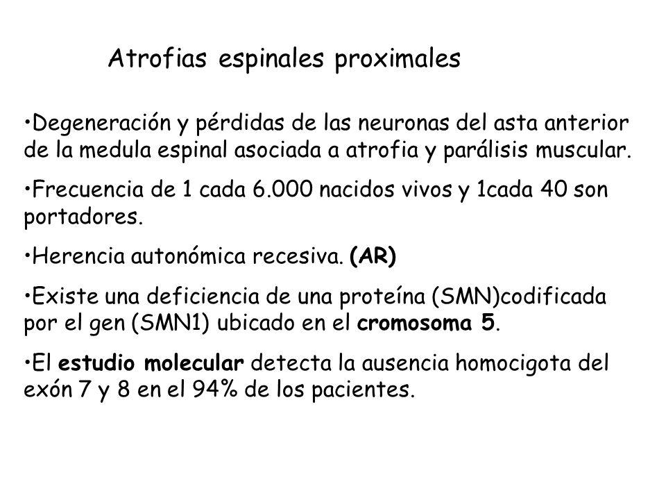 Atrofias espinales proximales