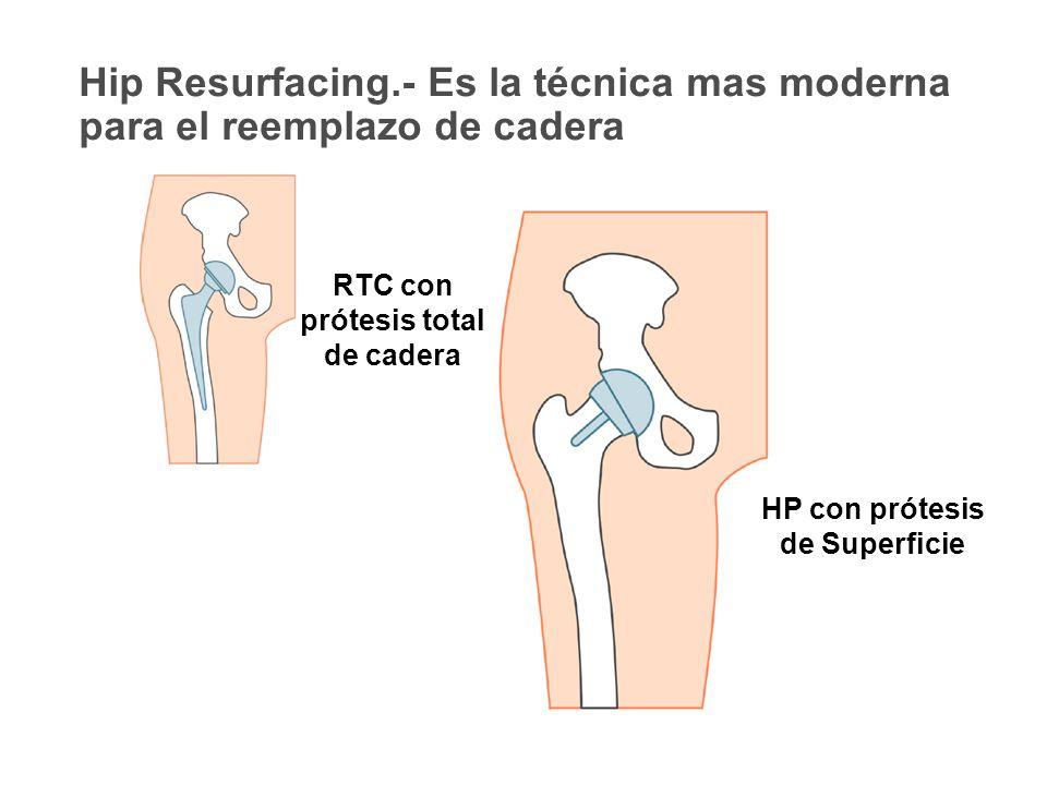 RTC con prótesis total de cadera HP con prótesis de Superficie