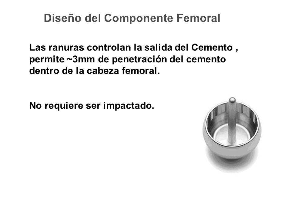 Diseño del Componente Femoral