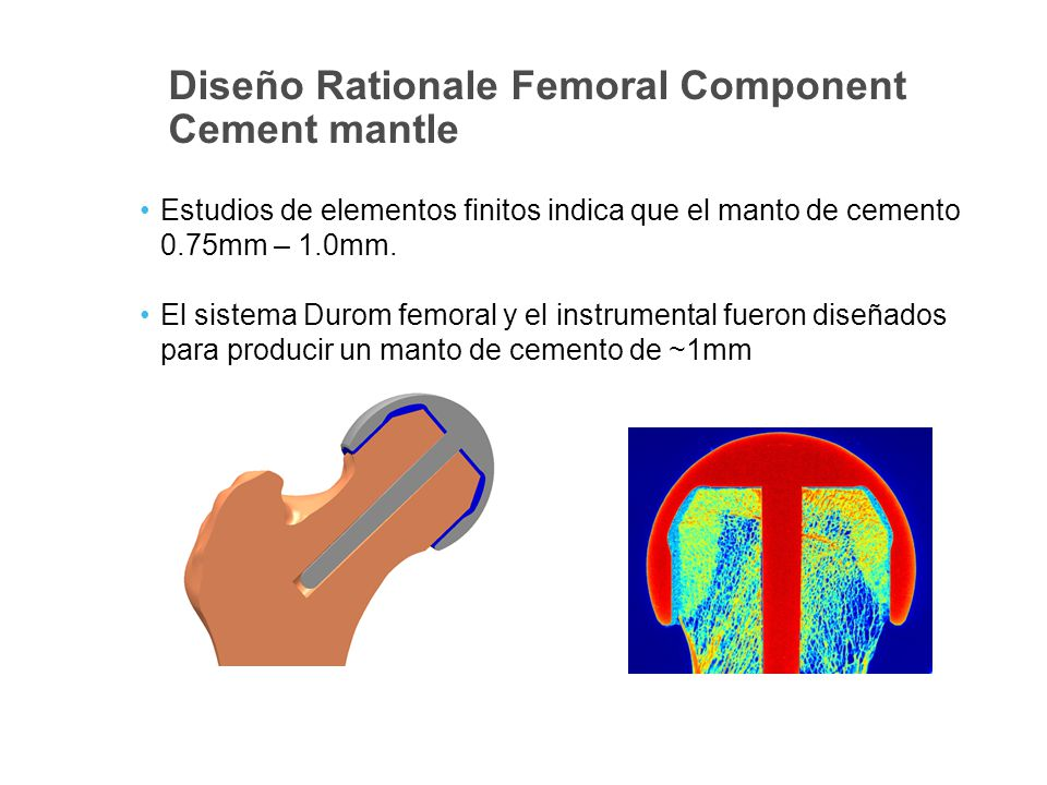 Diseño Rationale Femoral Component Cement mantle