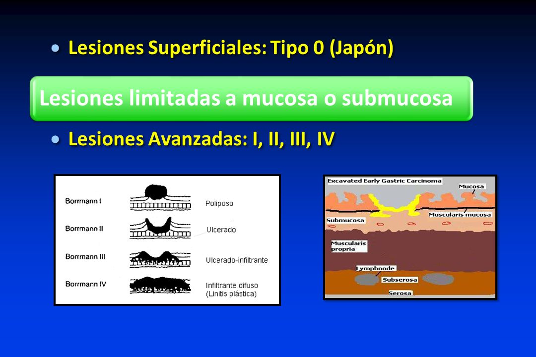 Lesiones Superficiales: Tipo 0 (Japón)
