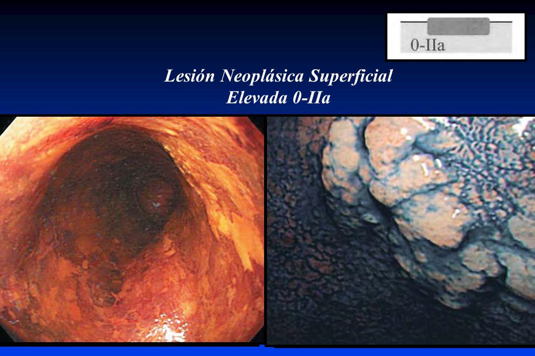 Lesión Neoplásica Superficial Elevada 0-IIa