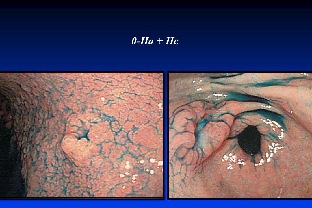 0-IIa + IIc Esofago – estomago prepilorico