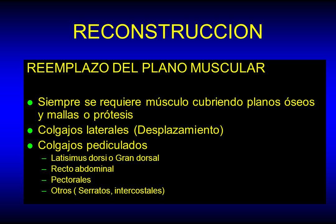 RECONSTRUCCION REEMPLAZO DEL PLANO MUSCULAR
