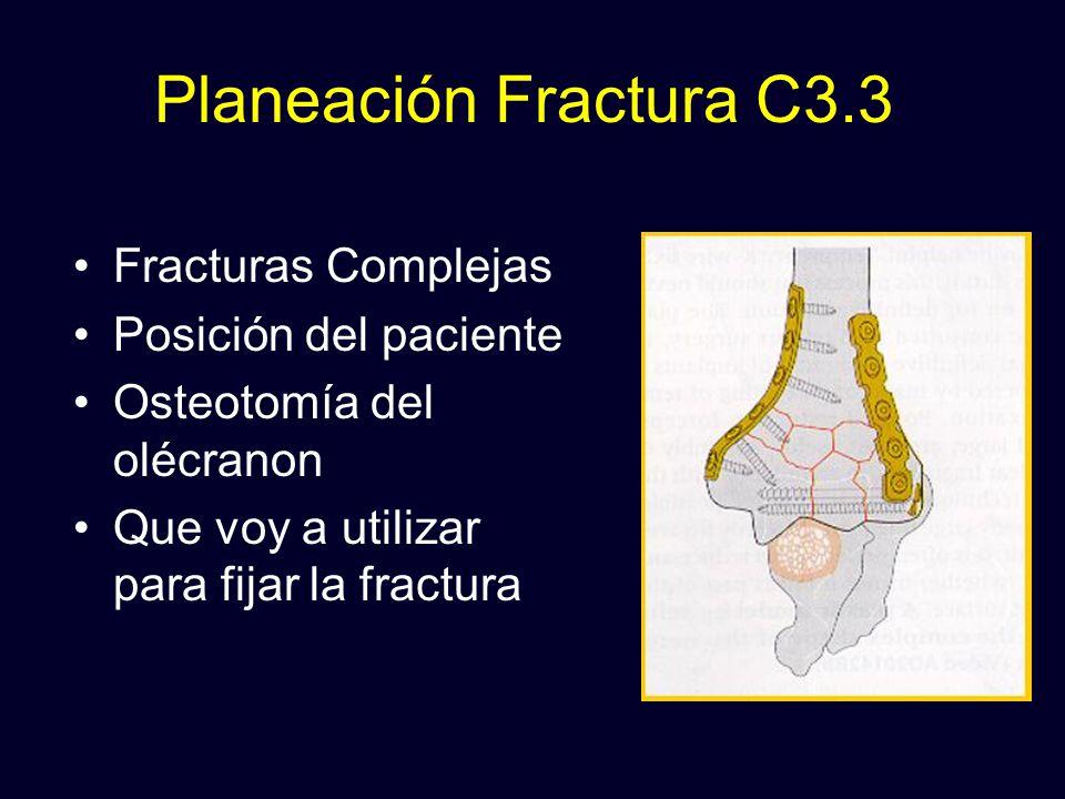 Planeación Fractura C3.3 Fracturas Complejas Posición del paciente