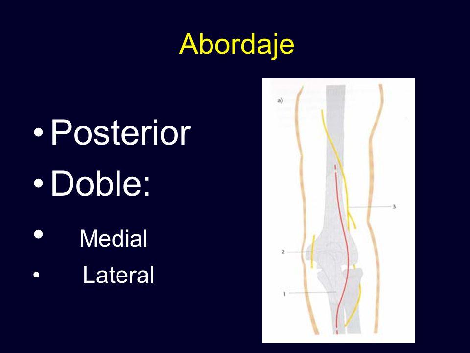 Abordaje Posterior Doble: Medial Lateral