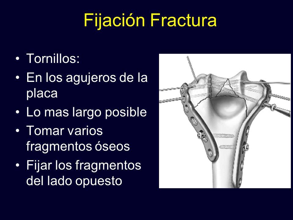Fijación Fractura Tornillos: En los agujeros de la placa